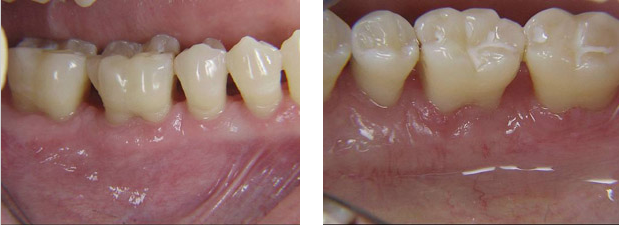 osseous_surgery-after
